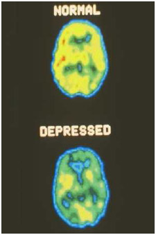 Computer-generated positron emission tomography (PET) scans show the brain of a healthy person (top) in contrast to the brain of a person with untreated depression (bottom). Doctors and researchers use PET scans to study how the brain functions.