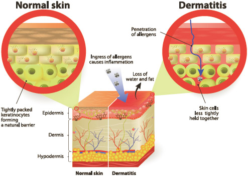 Normal skin and skin with dermatitis.