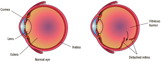 A detached retina refers to the movement of the retina away from the inner wall of the eyeball, resulting in a sudden defect in vision. Persons suffering from diabetes have a high risk of developing retinal disease.
