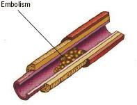 An embolism in an artery. An embolism blocking blood flow through an artery may be a serious problem.