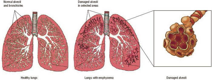 Healthy lungs (left); lungs with emphysema showing damaged alveoli (center); and close-up of damaged alveoli (right).