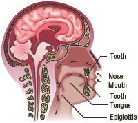 Normal airways allow the free flow of air through the nose and mouth past the epiglottis and then into the lungs.