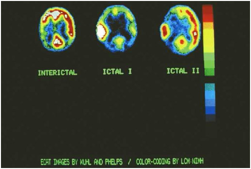 Epileptic seizures have different phases, as shown on these positron emission (PET) scans. The interictal phase (left) is the time between seizures. The ictal phase is the actual seizure. The ictal I phase (center) is more severe.