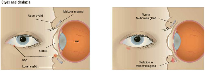 A stye (left) and a chalazion (right). The stye appears on the margin of the eyelid, while the chalazion occurs deeper within the meibomian gland of the eyelid.