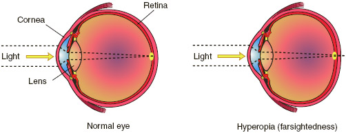 Farsightedness, or hyperopia, is a condition of the eye in which incoming rays of light impinge on the retina before converging into a focused image, resulting in difficulty seeing nearby objects clearly.