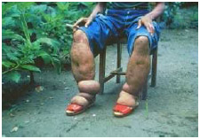 Lymphatic filariasis can progress to elephantiasis, a swelling and thickening of body tissues from accumulation of fluid. The skin may look thick, pebbly, and dark. CDC.