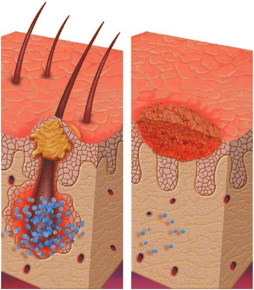 Hair on your body grows out of a tiny pouch called a follicle (left). You can have folliculitis on any part of your body that has hair, but it is most common on the beard area, arms, back, buttocks, and legs.