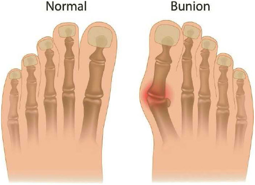 A bunion is formed when the first metatarsal bone (along the inner side of the foot) pushes out at the base of the big toe, and the big toe is displaced toward the smaller toes.