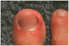 Ingrown toenails that have become infected may be treated with antibiotics. People with diabetes or circulatory system problems should receive regular foot care from a doctor or podiatrist.