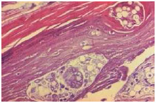This photomicrograph shows the skin tissue specimen of a patient with an intradermal keloidal blastomycosis infection that resulted in a chronic inflammatory response.