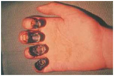 Fingers with gangrene. When the tissue turns black and dies, it must be removed surgically.