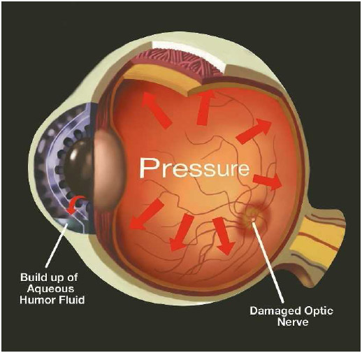 Glaucoma happens when the aqueous humor is prevented from draining properly. A rise in intraocular pressure can deform the optic nerve head and may eventually lead to the destruction of the optic nerve.