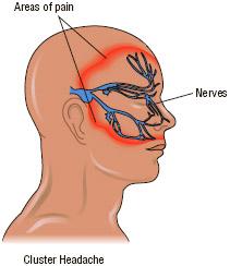 Headache, What are headaches?, What are the causes and types of headaches?,  What are tension headaches?, What are migraine headaches?