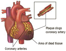 During a heart attack, the flow of blood to the heart is blocked by atherosclerotic plaque or clots, causing tissue death in the areas deprived of oxygen.