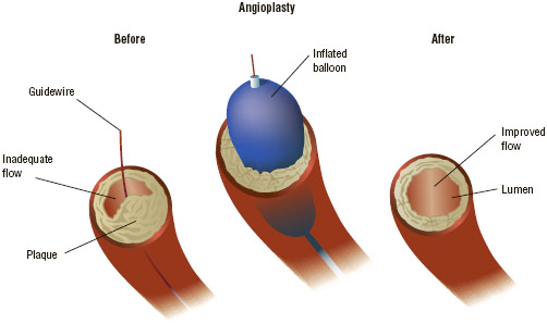 In balloon angioplasty, plaque is pushed out of the clogged artery by the inflation of the balloon device.