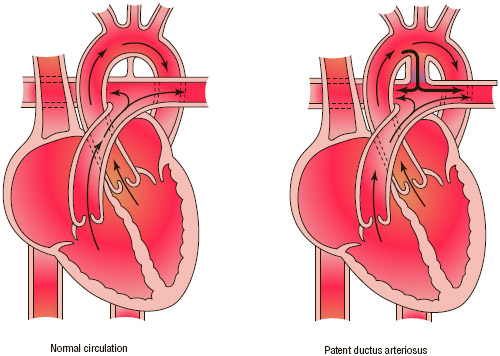 Patent ductus arteriosus (PDA) is the failure of the ductus arteriosus to close after birth, allowing blood to flow inappropriately from the aorta into the pulmonary artery.