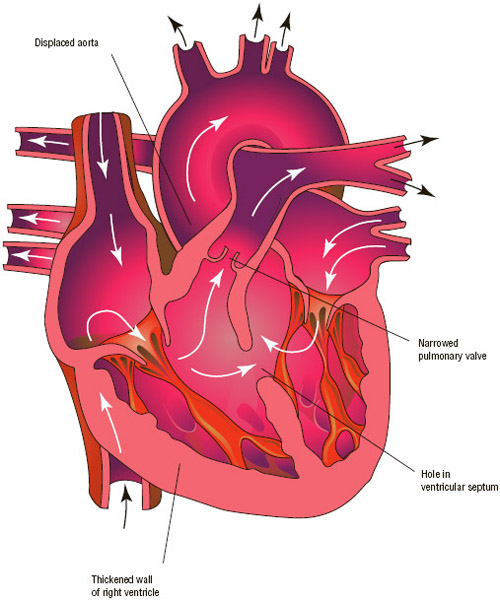 Tetralogy of Fallot is a common syndrome of congenital heart defects. This condition, present in utero, is caused by the narrowing of the pulmonary artery and a hole between the ventricles.
