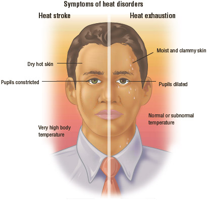 Heat-Related Injuries
