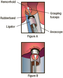 Rubber band ligation is probably the most widely used treatment for internal hemorrhoids. An applicator is used to place one or two small rubber bands around the base of the hemorrhoid, cutting off its blood supply (figures A and B).
