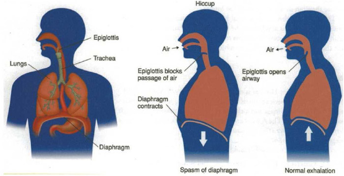 Hiccups occur when the diaphragm and lungs suddenly contract during breathing.