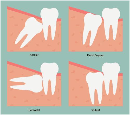 Various positions of impacted teeth.
