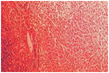 Magnification of a liver tissue specimen extracted from a malnourished patient who had developed kwashiorkor.
