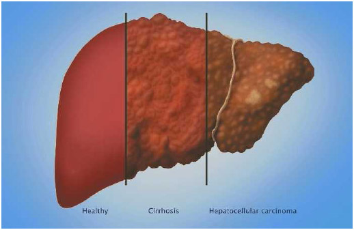 Comparison of healthy liver (left); liver with cirrhosis (center), which can lead to liver cancer; and liver with hepatocellular carcinoma (right), the most common type of liver cancer.