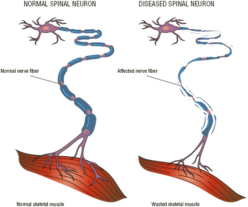 Amyotrophic lateral sclerosis is caused by the degeneration and death of motor neurons in the spinal cord and brain, which normally convey electrical messages from the brain to the muscles to stimulate movement in the arms, legs, trunk, neck,