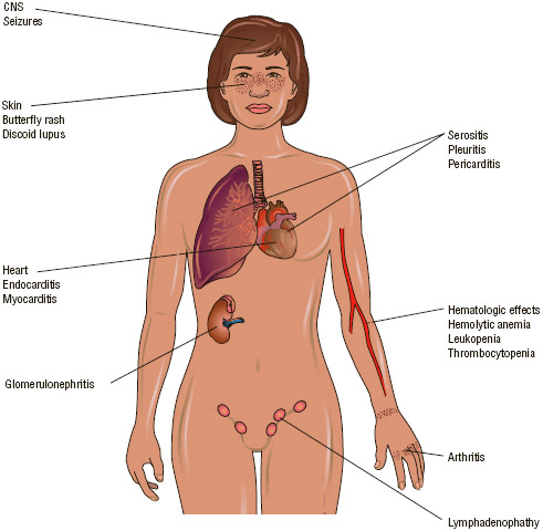 Systemic lupus erythematosus (SLE) is an autoimmune disease in which the individual's immune system attacks, injures, and destroys the body's own organs and tissues. Nearly every system of the body can be affected by SLE, as depicted in the illustration.