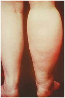 A lymphedema (swelling) is an accumulation of lymph fluid caused by obstructed lymph vessels. The leg on the left is normal; the leg on the right is affected by lymphedema.