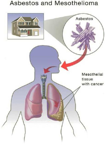 Mesothelioma is a rare form of cancer that is most commonly caused by exposure to asbestos.