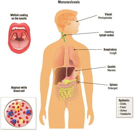 Signs and symptoms of infectious mononucleosis.