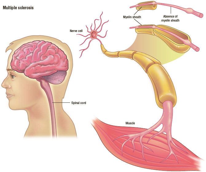 Multiple sclerosis (MS) is an autoimmune disease in which immune cells attack and destroy the myelin sheath, which stimulates neurons in the brain and spinal cord. When the myelin is destroyed,