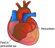 In pericarditis, fluid collects in the pericardial sac between the heart and the surrounding pericardium.
