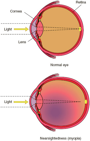 Nearsightedness, or myopia, is a condition of the eye in which objects are seen more clearly when close to the eye while distant objects appear blurry or fuzzy.
