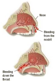 Anatomical sideview of two types of nosebleeds.