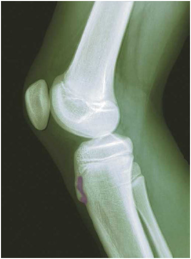 The x-ray of a 12-year-old boy with Osgood-Schlatter disease. The bump on the shin bone just below the knee (shown in purple) shows a partial detachment from the rest of the bone, resulting in pain and swelling.