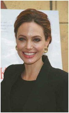 Actress Angelina Jolie carries a gene mutation called BRCA1 that puts her at high risk for breast and ovarian cancers.