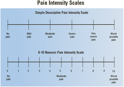 Medical professionals use pain intensity scales to help determine the level of pain a person is suffering.