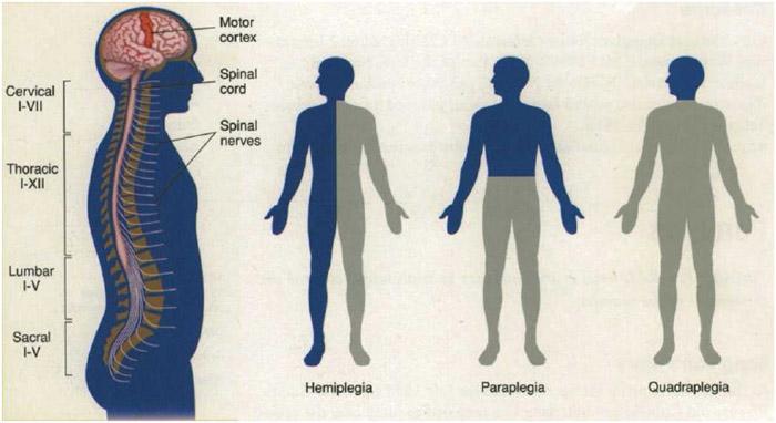 Jenis-jenis Paraplegia