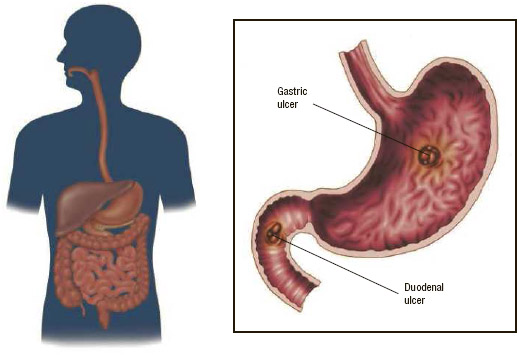 Peptic ulcers may occur in the stomach (gastric ulcers) or in the first part of the small intestine (duodenal ulcers). Many peptic ulcers are the result of infection with H. pylori bacteria.