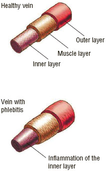Healthy vein (top) and vein with phlebitis (bottom).
