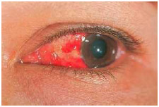 Early symptoms of pink eye (conjunctivitis) can be a gritty sensation or feeling of something in the eye. As it progresses redness develops in the eye and the eyelid may swell.