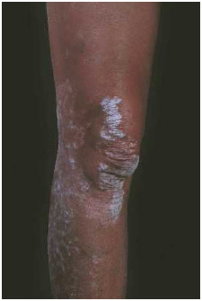 The white scaly rash caused by psoriasis often appears on the legs around the knees.