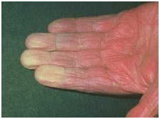 The hand of a person with Raynaud's disease. The fingertips are white because the arteries are constricted, which cuts off blood supply and causes numbness and tingling.