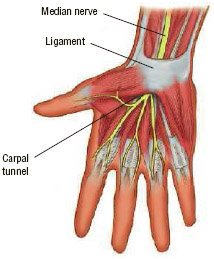 Carpal tunnel syndrome affects people who overuse their hands on piano or computer keyboards.