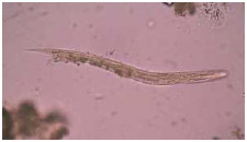 The roundworm (nematode). Strongy-loides stercoralis causes strongyloidiasis, a human parasitic disease. Most cases of strongyloidiasis in North America are spread by travelers who have visited or lived in South America or Africa.