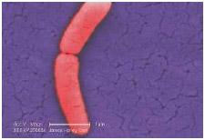 The Salmonella typhimurium bacterium that can cause diarrhea.