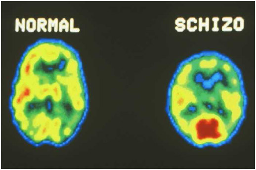 Positron emission tomography (PET) scans are computer-generated images of brain activity.