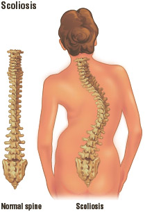 Normal spine compared to a spine affected by scoliosis. Illustration by Electronic